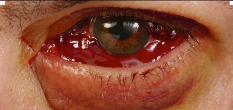 Found this on lookafteryoureyes.org - this is what my eye looked like