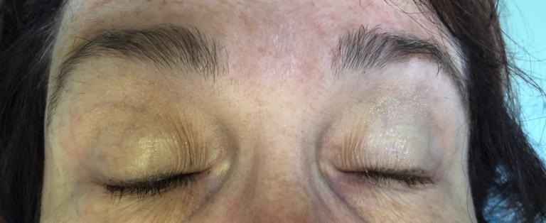 Eyelashes before